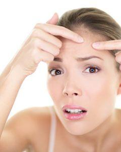 Dead Sea Acne Treatment
